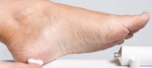 shaving cream and listerine foot mask