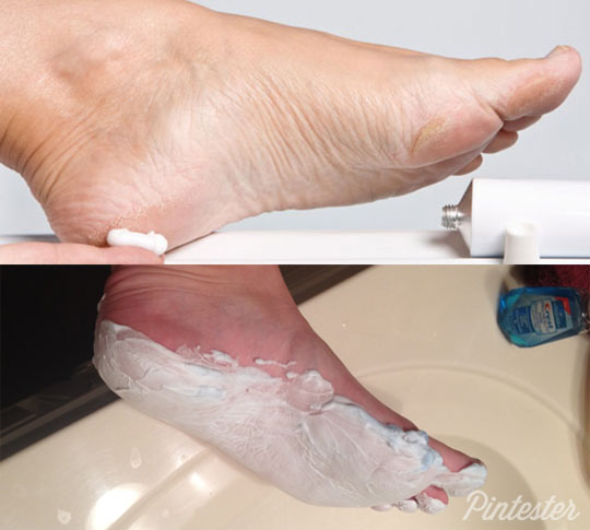 shaving cream and listerine foot mask results