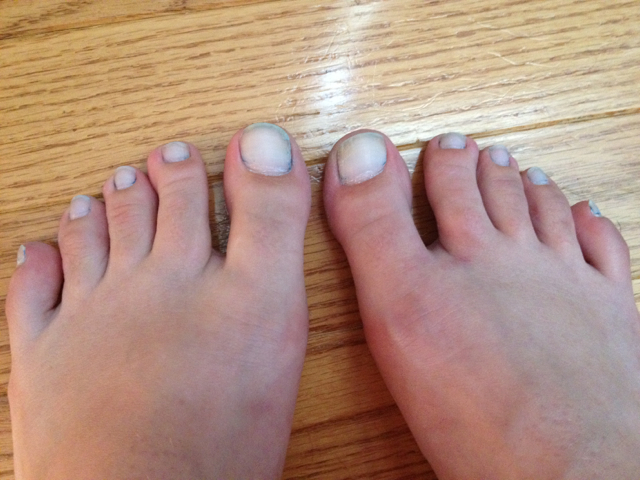 Whiten Toenails with Toothpaste | Pintester
