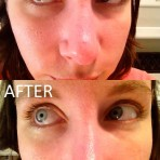 blackhead-beforeafter